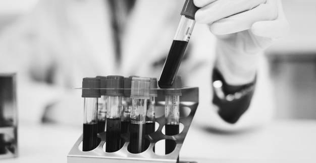 Laborvizsgálatok értelmezése: Fehérvérsejtek