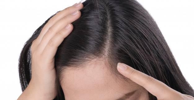 Hogyan kezeljük a korpás fejbőrt?