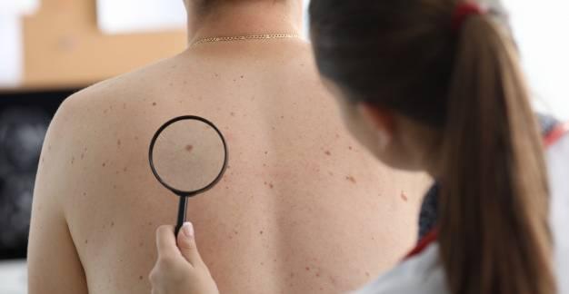 Mit tegyünk a melanoma rizikófaktorai ellen?