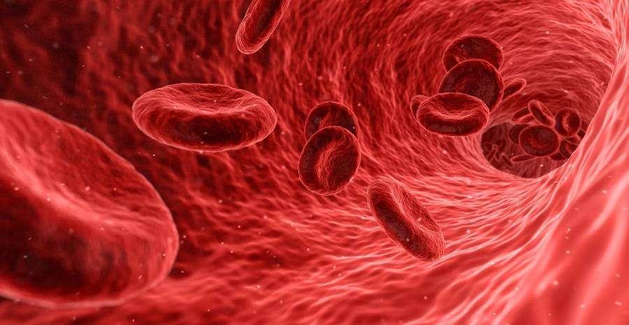 Megelőzhető-e a néma trombózis kialakulása?
