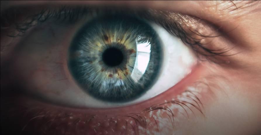 Hogyan készüljünk fel a lézeres szemműtétre?